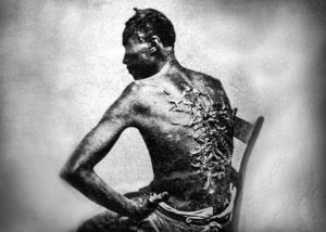 african american freedom day whip scars